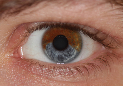 occhio-da-castano-ad-azzurro