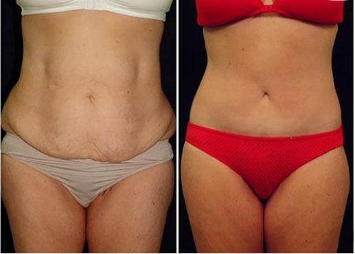 addominoplastica intervento prima e dopo